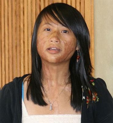 Vượt lên số phận, nữ sinh gốc Việt được vinh danh ở Mỹ